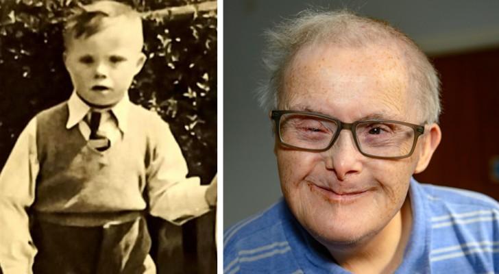 Läkarna sa att han inte skulle bli äldre än 10, men den här mannen med Downs syndrom har just fyllt 77