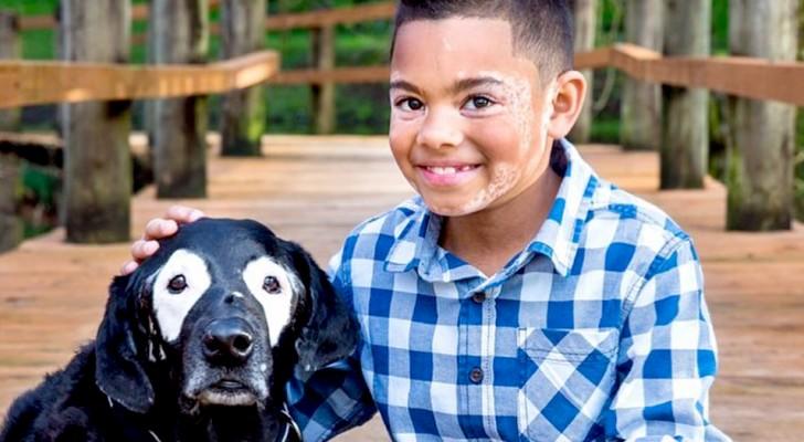 Questo bimbo con vitiligine vince la depressione grazie ad un cane con la sua stessa condizione