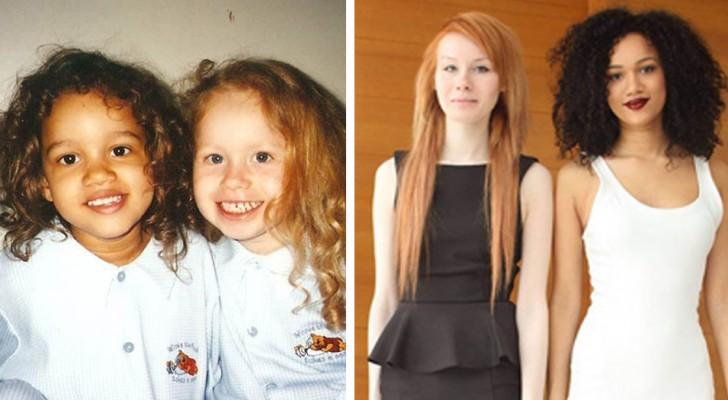 Estas gemelas diferentes no tienen el mismo color de piel: el extraño caso de Lucy y María