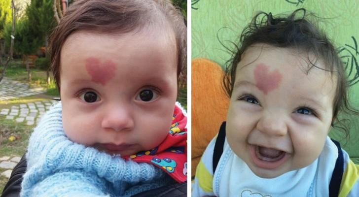 Ele é o bebê do amor, nascido com uma manchinha em forma de coração na testa