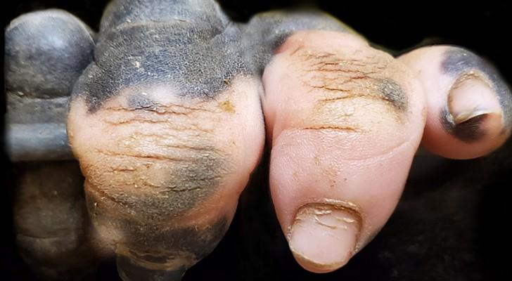 Ein Gorilla, der mit einem Pigmentmangel an der Hand geboren wurde, erinnert uns daran, wie sehr diese Tiere uns ähnlich sehen...