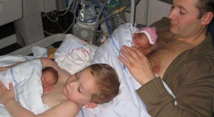 Nesta foto um menino oferece calor humano e contato pele a pele ao seu irmãozinho prematuro