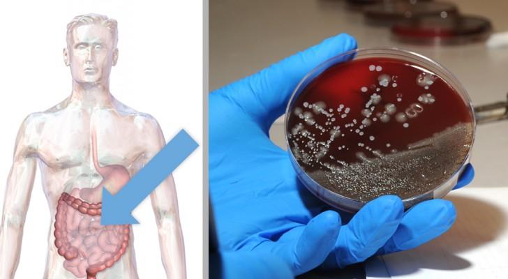Crise cardiaque : une recherche italienne révèle l'incidence d'une bactérie intestinale, ouvrant la voie à de nouvelles thérapies