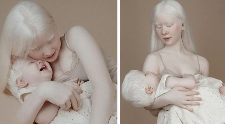 Diese beiden Albinoschwestern wurden mit 12 Jahren Abstand voneinander geboren: Ihr Aussehen ist einzigartig und charmant
