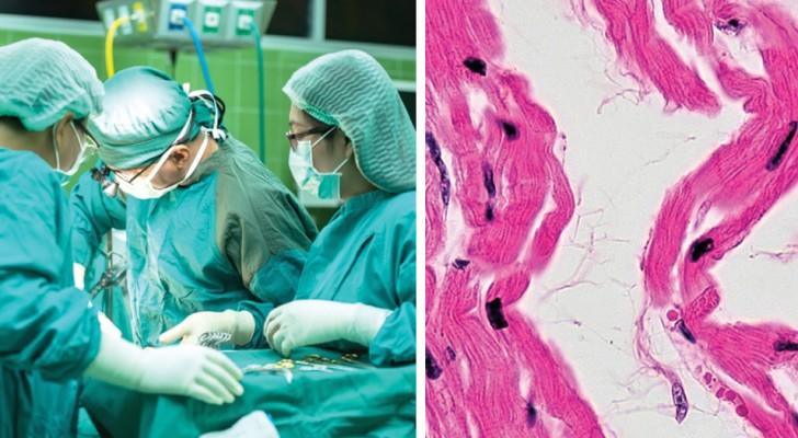 Pour la première fois, des muscles cardiaques obtenus à partir de cellules souches ont été transplantés dans un cœur humain