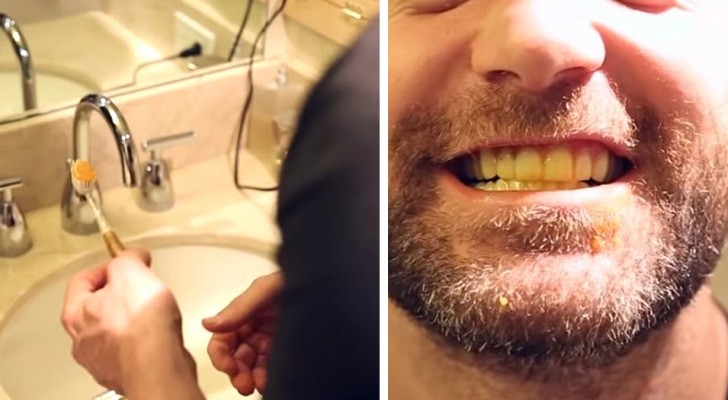 Il rimedio naturale e a costo zero per sbiancare i denti utilizzando la curcuma