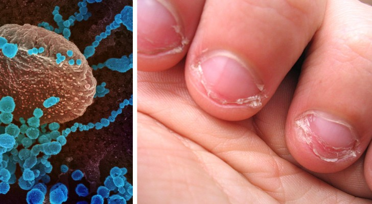 Biting your nails can increase your risk of getting Coronavirus: experts warn