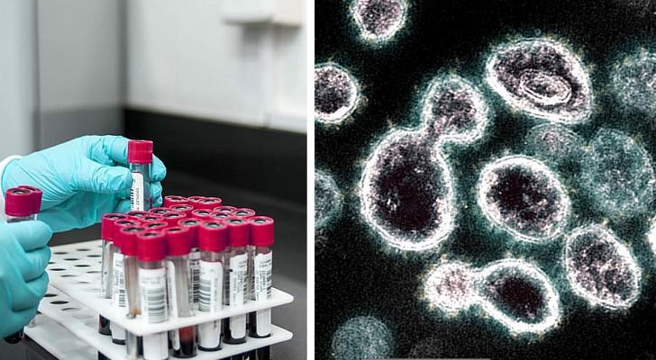 Covid-19: Ein schneller und kostengünstiger Test zeigt, ob ein geheilter Patient eine Immunität entwickelt hat