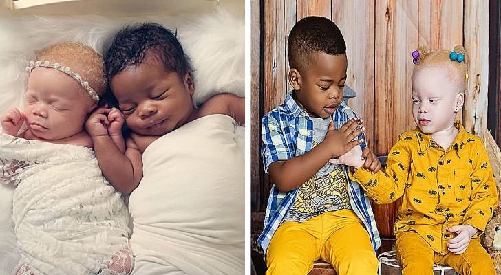 Una donna partorisce due splendidi gemellini diversi e ne documenta la crescita in modo originale