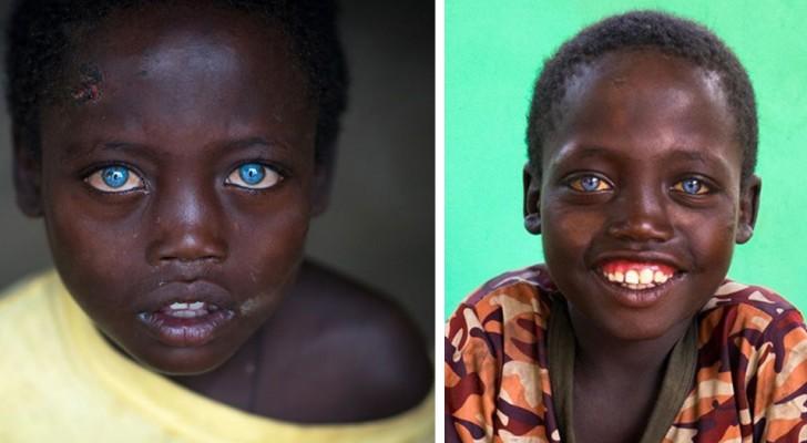 Dieser äthiopische Junge wurde mit einer seltenen genetischen Mutation geboren, die seine Augen ungewöhnlich blau macht