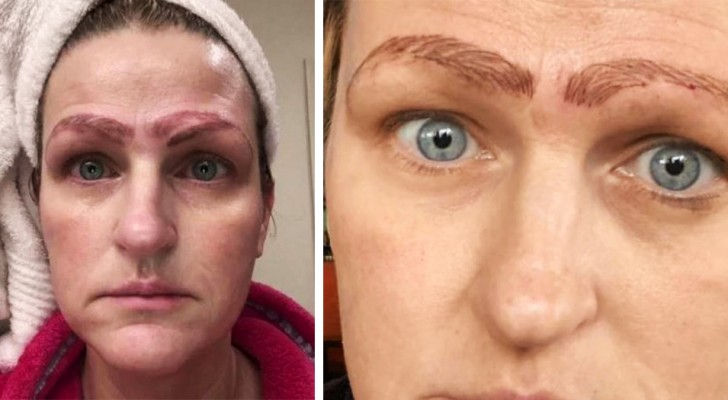 En kvinna har 4 ögonbryn efter en misslyckad halvpermanent tatuering