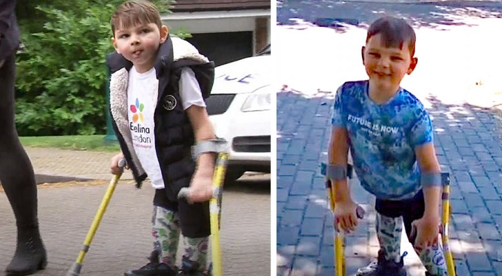 Boy with prosthetic legs walks 10 km and raises 1 million euros for the hospital that saved his life
