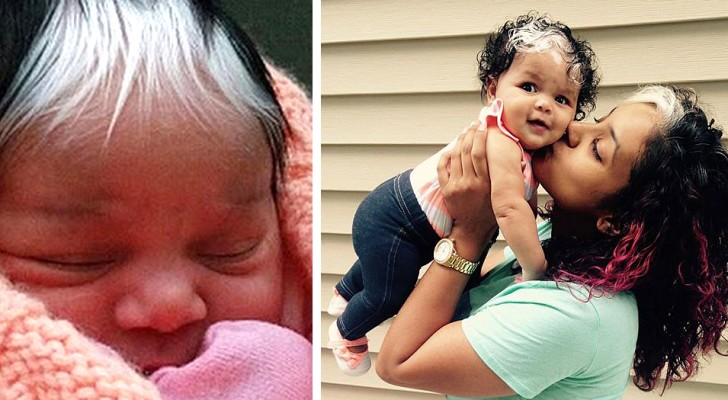 This girl was born with a singular tuft of white hair: a unique and fascinating distinctive trait