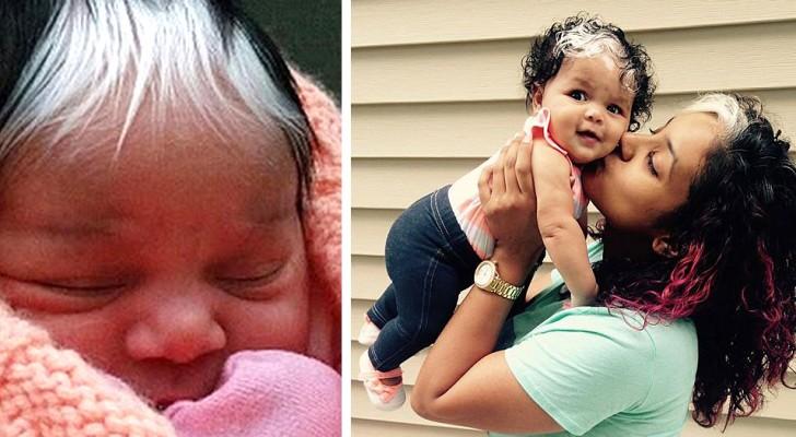 Questa bimba è nata con un singolare ciuffo di capelli bianchi: un tratto distintivo unico e affascinante