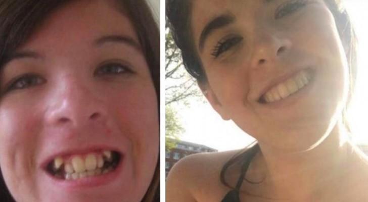 11 Fotos zeigen, wie ein guter Zahnarzt das Gesicht einer Person verändern kann