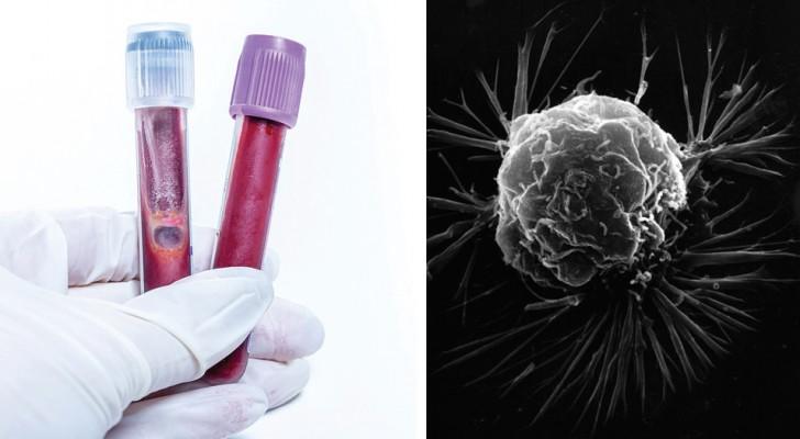 Un esame del sangue sarebbe in grado di diagnosticare il cancro fino a 4 anni prima dai sintomi: lo studio