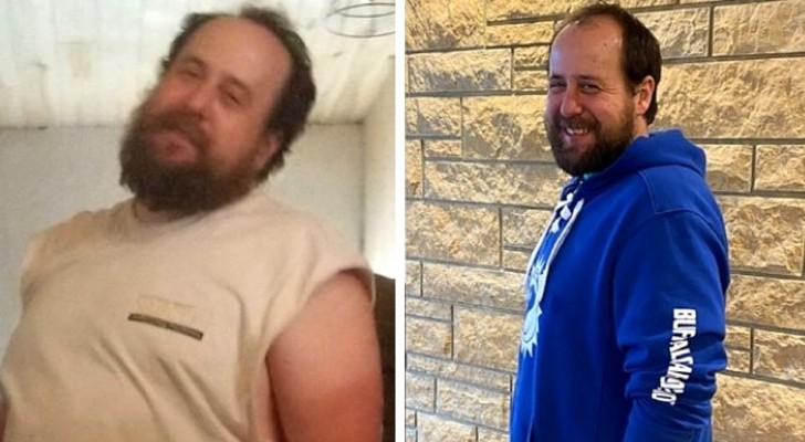 Um pai faz dieta e perde 20 kg para doar parte do fígado para seu filho e salvar a sua vida