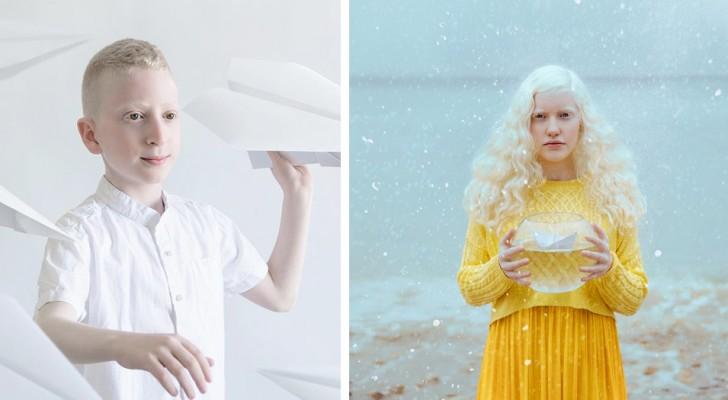 Ein Fotograf hat die ganze poetische Schönheit der Albino-Menschen in einer Reihe von magischen Aufnahmen festgehalten