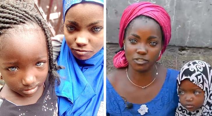 Un hombre abandona a la mujer e hijas porque tienen los ojos azules: una absurda historia de discriminación