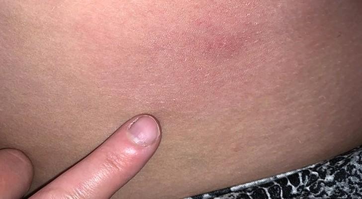 Dit meisje lijdt aan een zeldzame allergie voor water: elke keer dat ze zich wast, moet ze medicijnen gebruiken