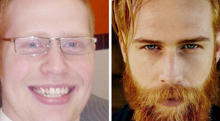 10 persone che hanno deciso di farsi crescere la barba e ora sono praticamente irriconoscibili