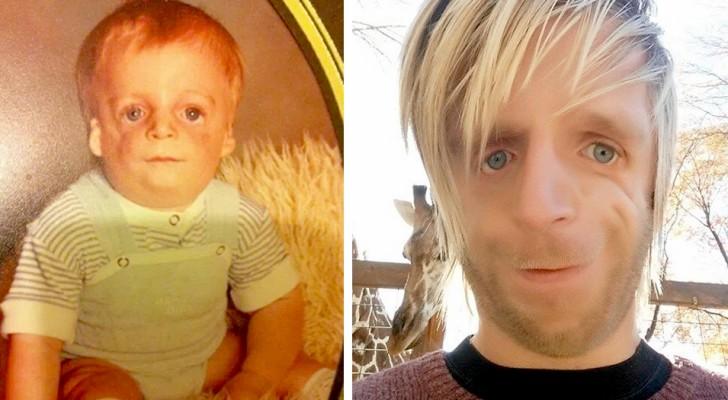 Viene abbandonato appena nato perché troppo brutto, ora ispira milioni di ragazzi ad accettare il proprio aspetto