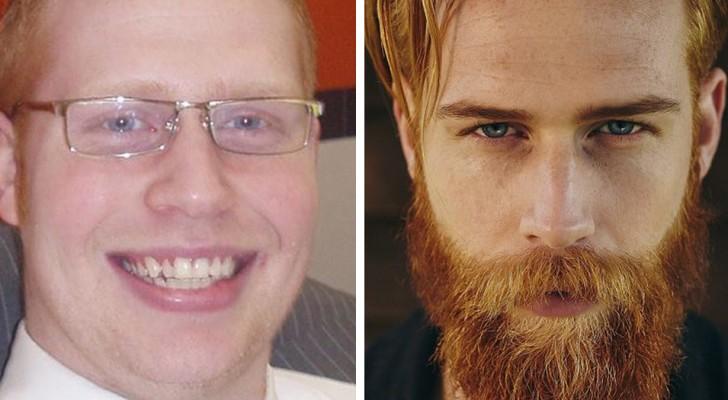 15 Männer, deren Aussehen sich zum Besseren veränderte, nachdem sie sich nicht mehr rasierten