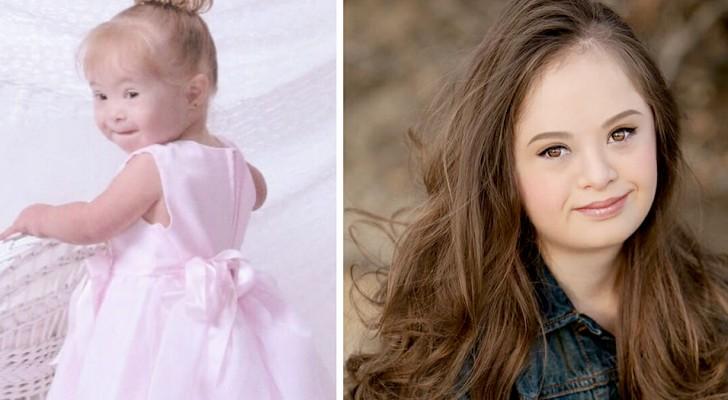 Esta garota com síndrome de Down derrotou uma leucemia e tornou seu sonho realidade: ela agora é uma modelo de sucesso