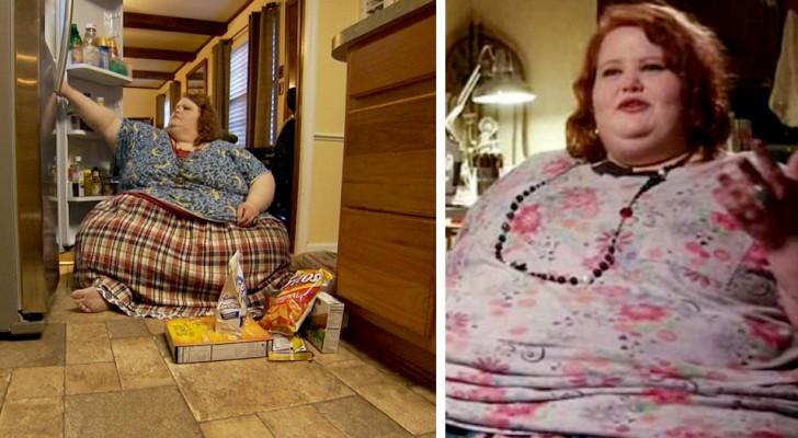 Pesaba casi 300 kilos, pero con la ayuda de los médicos y de la propia fuerza ha transformado completamente su vida