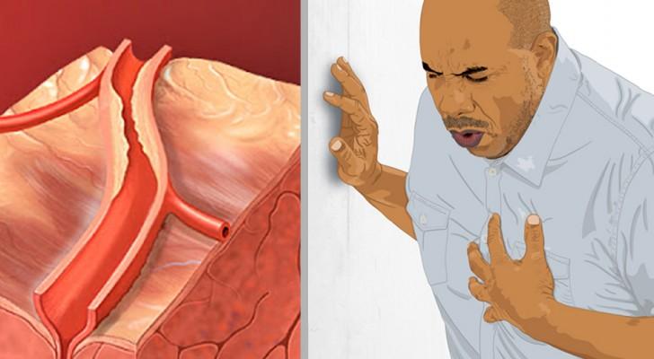Här 5 tecken som kan indikera en pågående hjärtinfarkt: att känna till dem kan rädda ditt liv