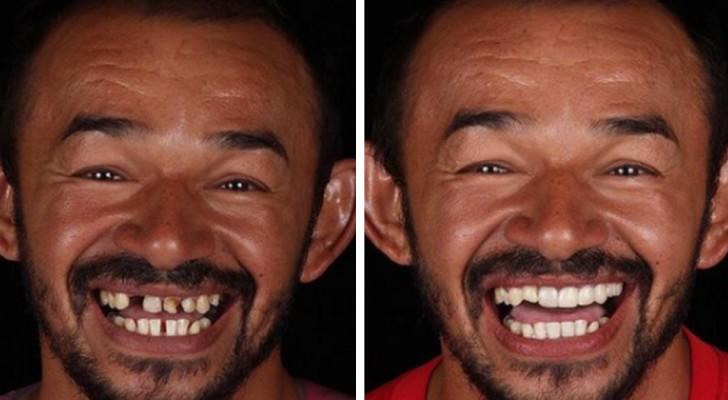 Ein brasilianischer Zahnarzt schenkt weniger begünstigten Menschen ein neues Lächeln: 20 Fotos zeigen die unglaublichen Verwandlungen
