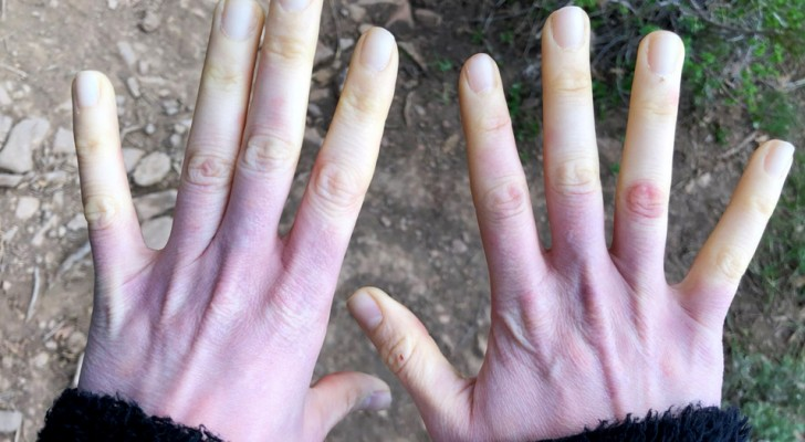 If your fingers start to turn pale when cold, you may have Raynaud's syndrome