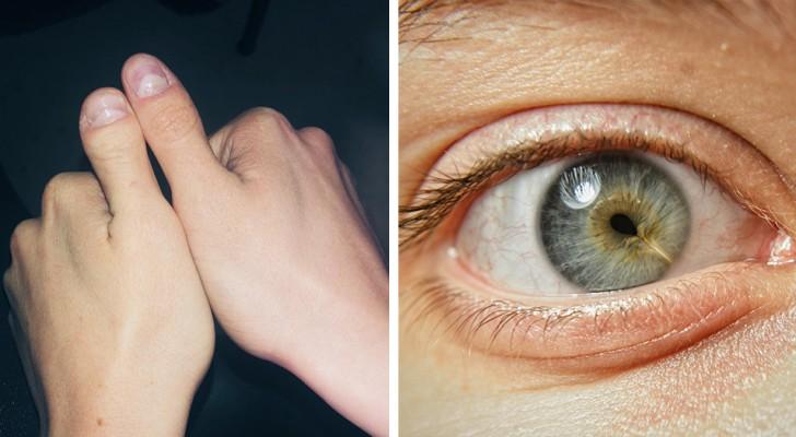 15 foto di persone che hanno deciso di mostrare le loro particolarità fisiche senza timore