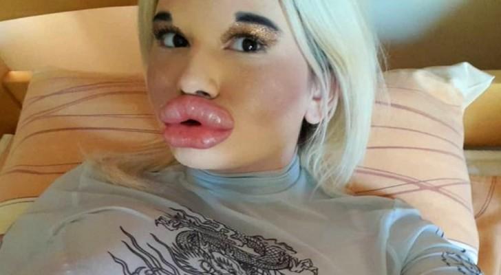 En 22-årig kvinna pumpar sina läppar på ett överdrivet sätt, men vill ha dem ännu större - på sociala medier kallar de henne