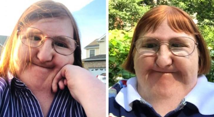 Hon blir mobbad på nätet för sin funktionsnedsättning och som svar lägger hon upp selfies under ett helt år