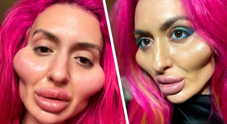 Elle a 32 ans et est accro aux retouches esthétiques : elle a dépensé 1 600 £ pour avoir les pommettes