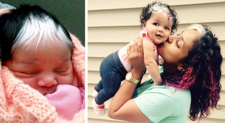 Bimba nasce con una curiosa chiazza di capelli bianchi: un tratto che ha ereditato dalla madre e della nonna