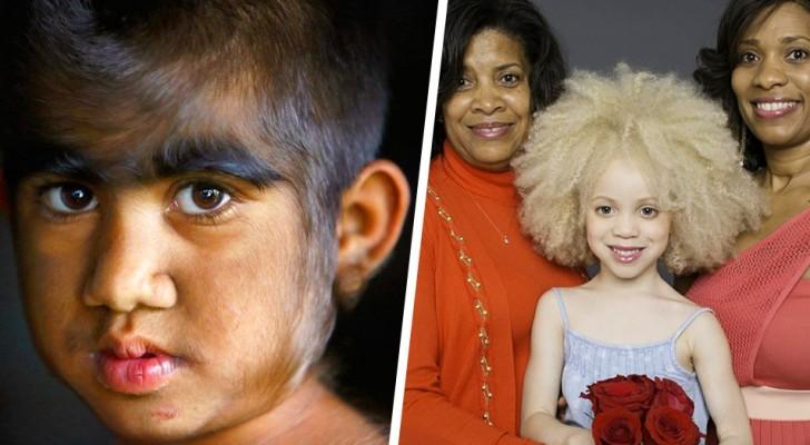 11 crianças nascidas com características muito especiais e fora do comum