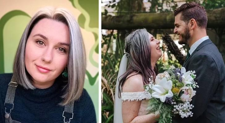"""""""Ich will sie nicht mehr verstecken"""": 25-Jährige mit weißen Haaren hört auf, sie zu färben, und liebt sich so, wie sie ist"""