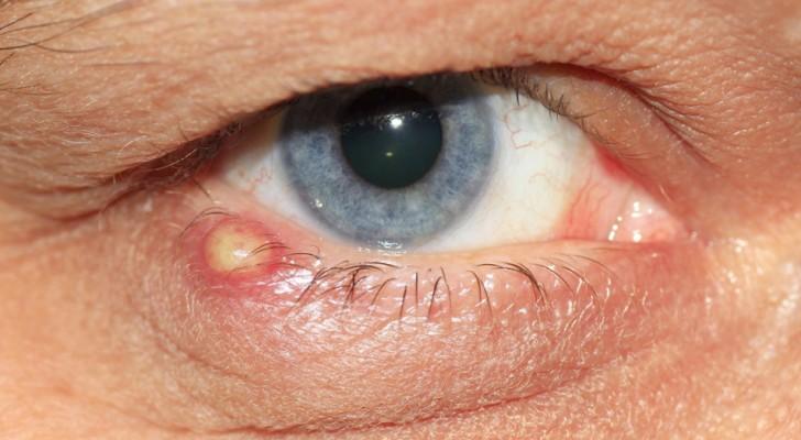 Een strontje is een vervelende zwelling die onze oogleden kan aantasten: enkele van de belangrijkste oorzaken