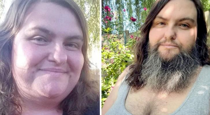 Cette femme a décidé d'arrêter de se raser le visage et de se laisser pousser la barbe :