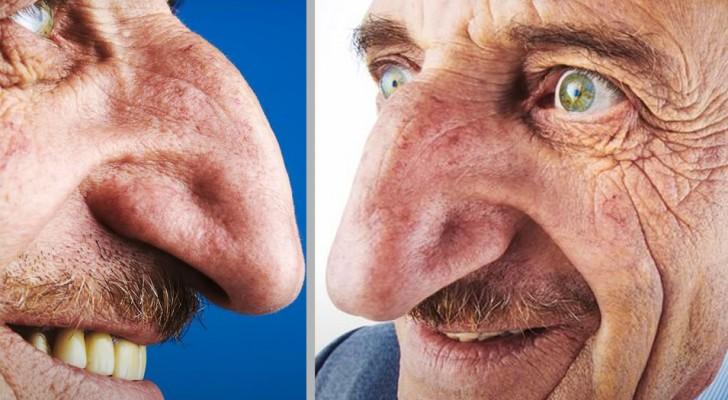 Die größte Nase der Welt gehört einem 71-jährigen Mann: Sie misst fast 9 cm