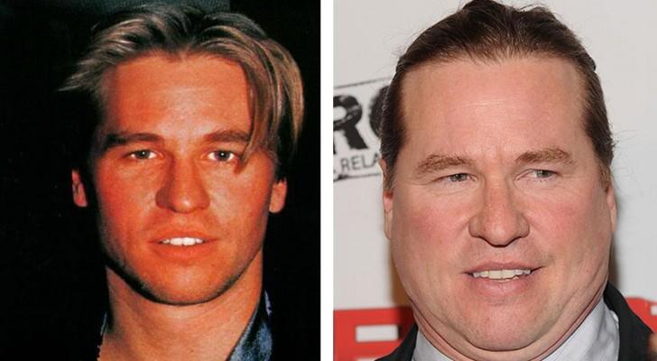 Le foto prima e dopo di 12 celebrità sfigurate dalla chirurgia estetica (e non solo)