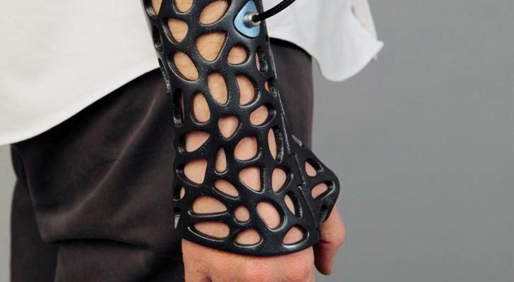 Non è il braccio di un supereroe, ma un 'gesso' stampato in 3D... con dei superpoteri