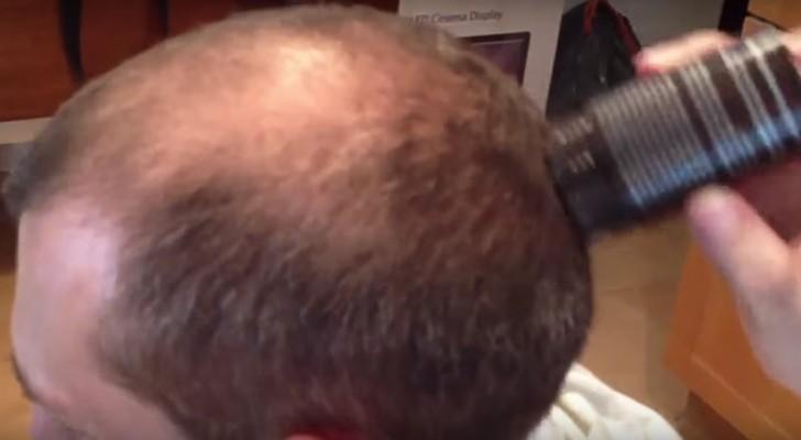 få tillbaka hår på huvudet