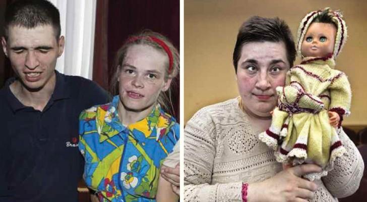 Chernobyl 30 anni dopo: chi sono e come vivono oggi le vittime invisibili del disastro